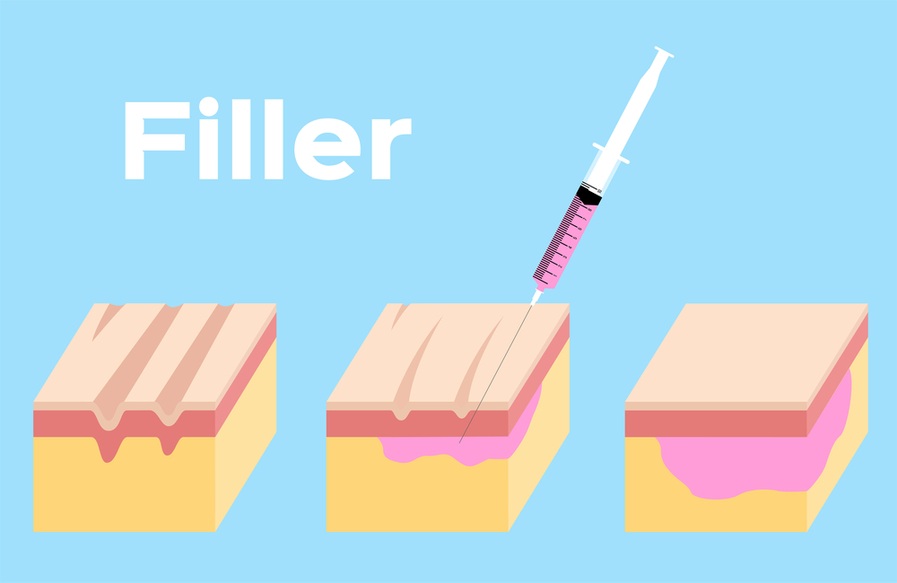 Botox and Dermal Filler Services